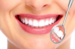 Beaming White Teeth Whitening
