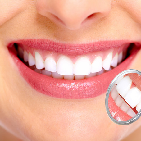 10 Foods and Drinks That Brighten Teeth