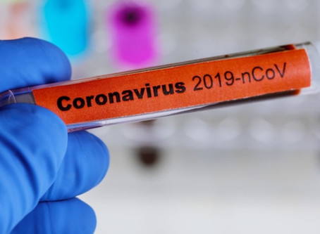 What can small businesses do to reduce the risk of the COVID- 19 Virus