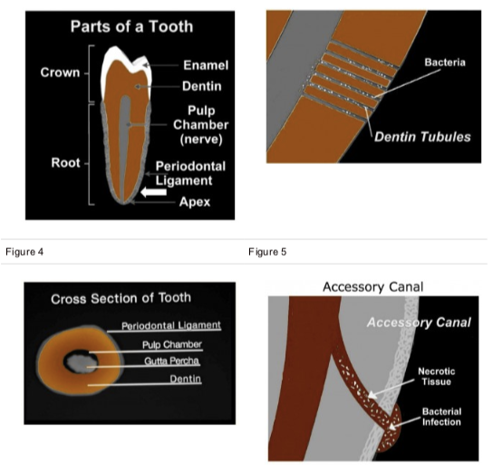 root canals.png