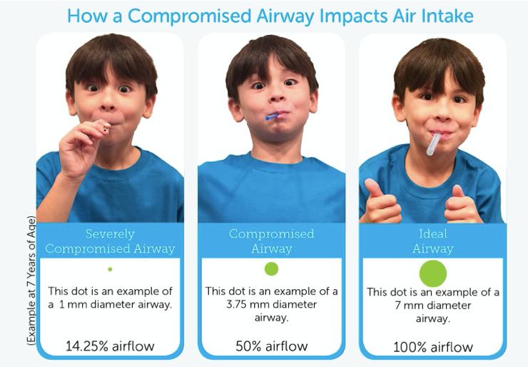 compromised airway.png