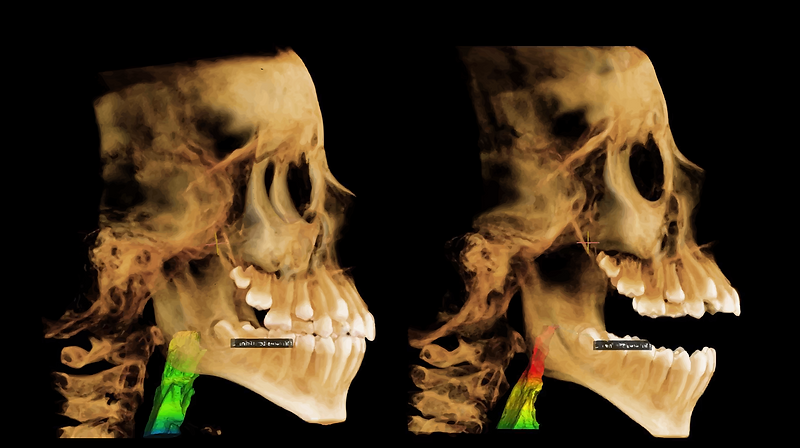 central-dentist-cbct-of-airway-mouth-bre
