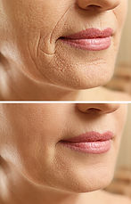 Mature woman face before and after cosme