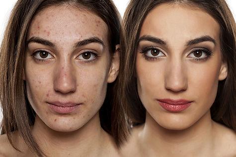 Acne treatment, acne scar treatment, laser ace treatment, laser scar removal