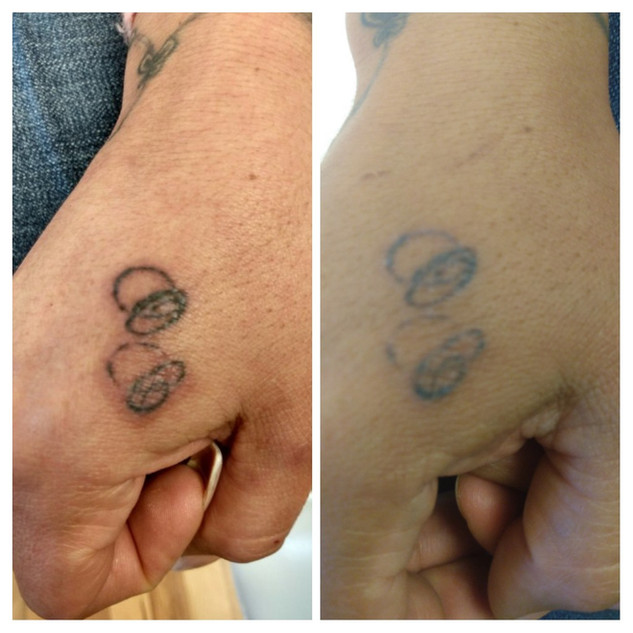 Before and after hand tattoo fading