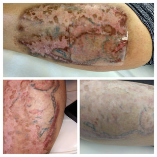 Acid tattoo removal Aspen, CO