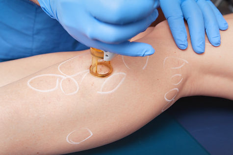 Spider Vein removal, laser spider vein removal