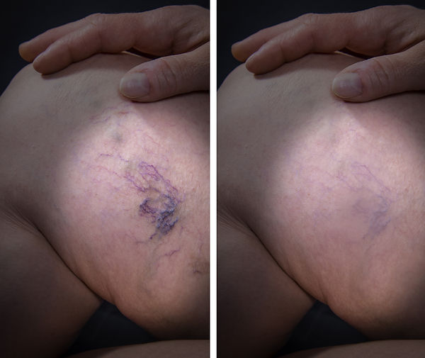 Adult woman leg with varicose veins befo