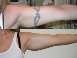 Laer tattoo Removal Grand Junction, CO
