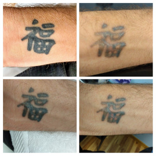 Laser tattoo removal Glenwood Springs, CO 81601