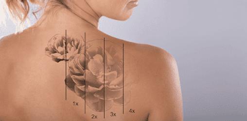 tattoo rmoval, laser tattoo removal