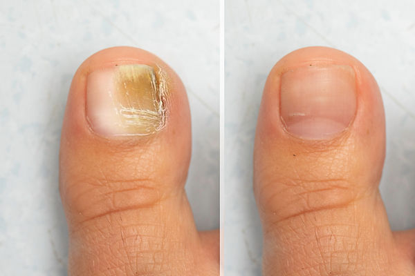 Before and after successful mycosis trea