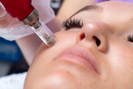 Fractional microneedle facial therapy cl