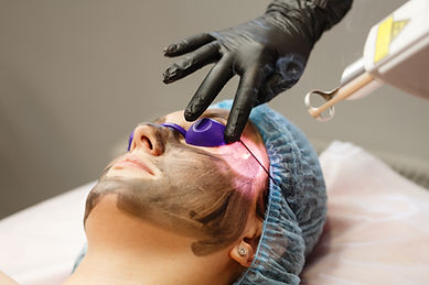 Carbon face peeling. Laser pulses clean the skin of the face. Hardware cosmetology. The pr