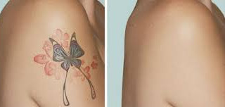 Laser tattoo Removal Vail, CO