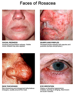 rosacea, rosacea treatment, doctor, dermatologist, glenwood springs, carbondale, basalt, aspen, vail edwards, gypsum, eagle, new castle, silt, rifle, grand junction, Co, Colorado