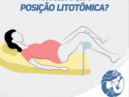 Você sabe o que é posição litotômica?