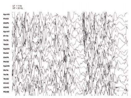 Traçado do eletroencefalograma demonstrando hipsarritmia, com ondas desorganizadas com espículas de alta voltagem. Fonte: Tratado de Neurologia Pediátrica.