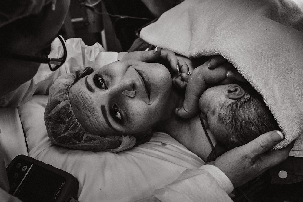 mother clutches her newborn to her chest and looks up to her own mother after he was born maternal assisted cesarean