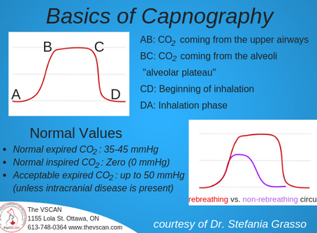 Capnography: What is it and what is it telling me?