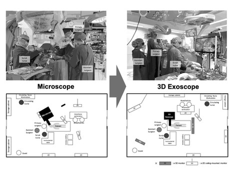How 3D exoscopes shape surgical teamwork in an operating room