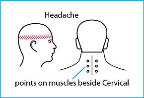 headache pic.png