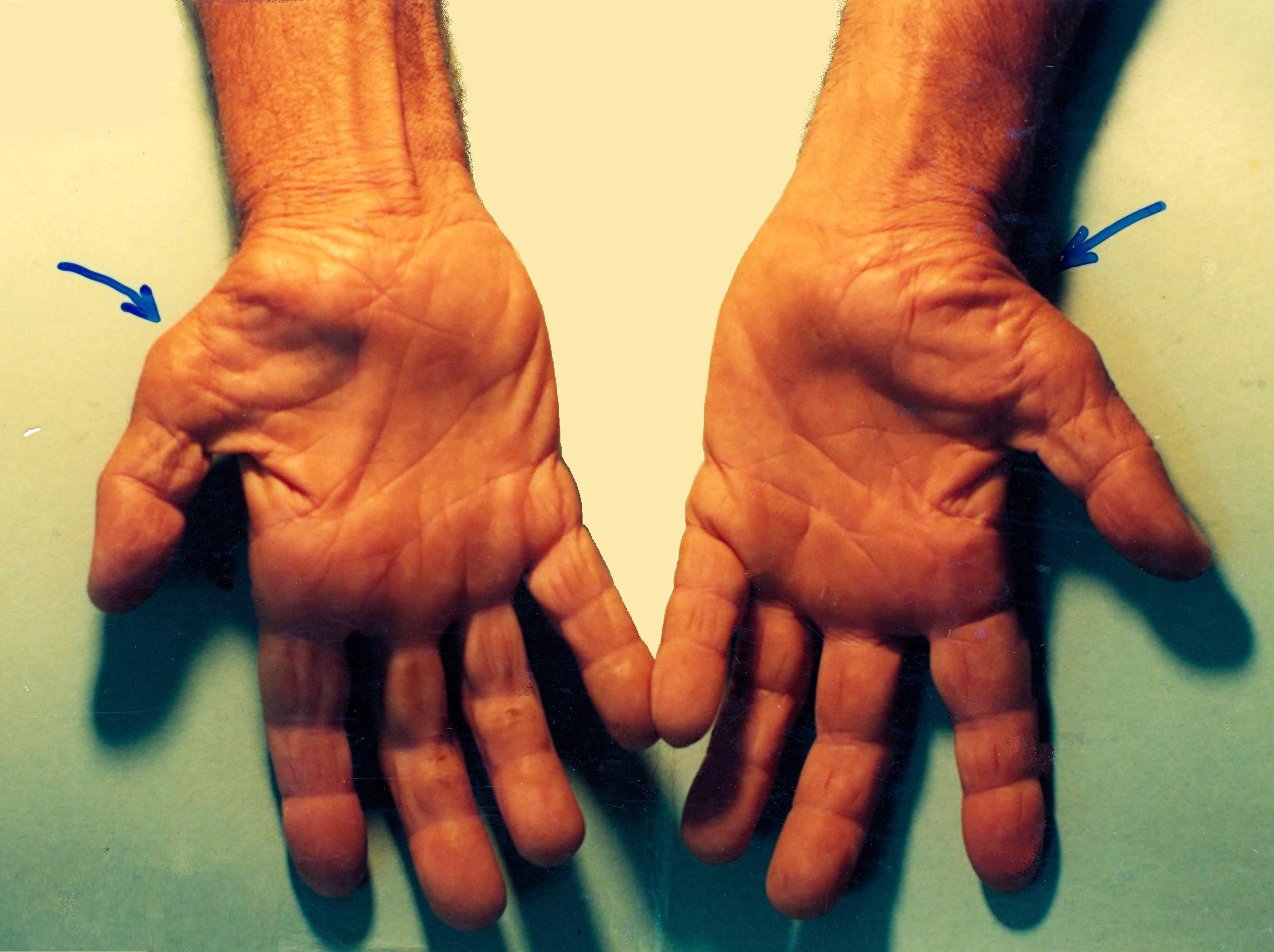 A photo of two hands with inflammed thumbs caused by untreated carpal tunnel syndrome.