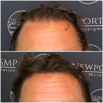 Hairline Density
