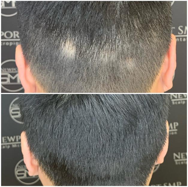 Alopecia Camoflauge