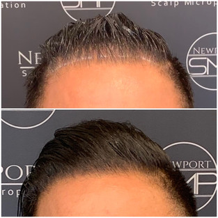 Front Hairline Density