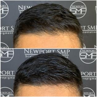 Hairline Density Treatment