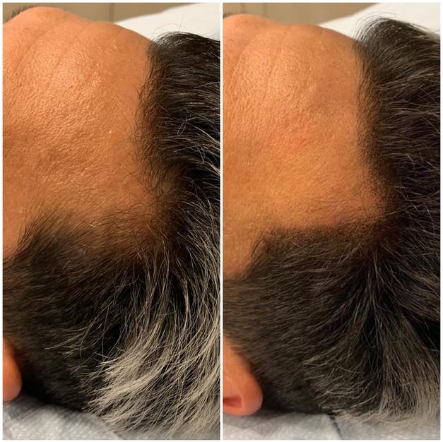 Hairline / Temple Density