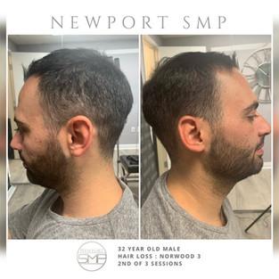 Side Density SMP