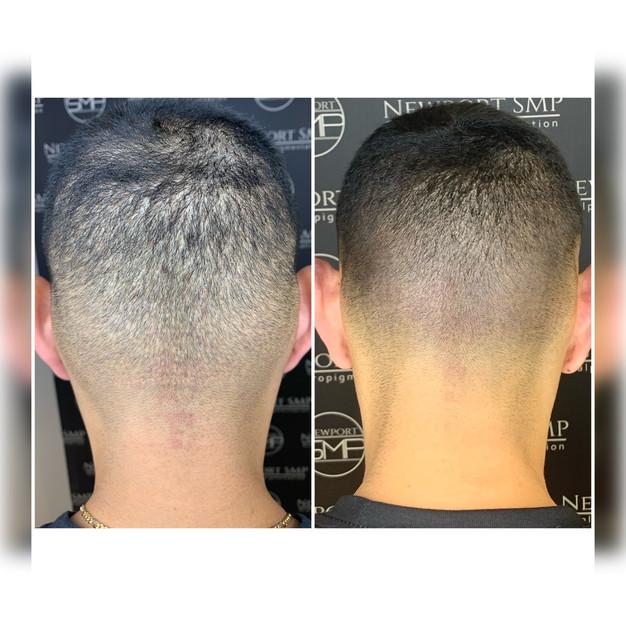 FUE Hair Transplant Scar Camoflauge