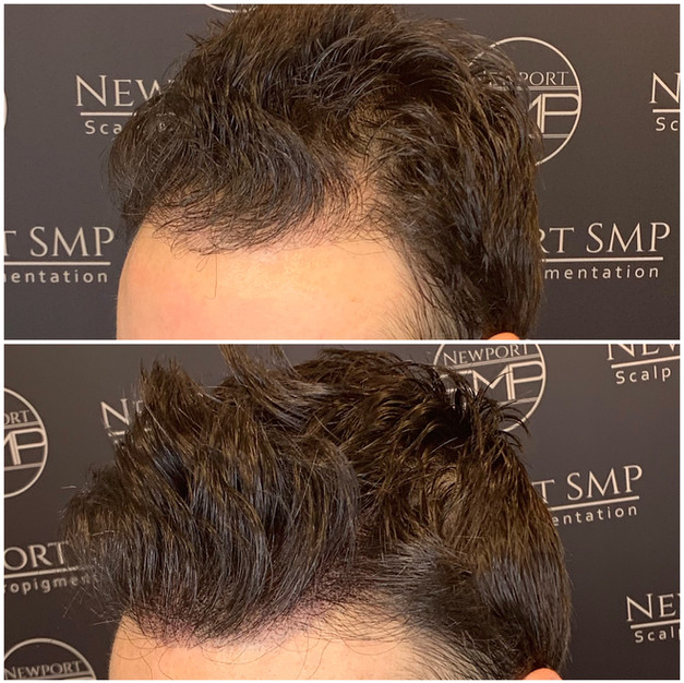 Hairline & Temple SMP Density