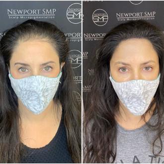 Female SMP Density Treatment