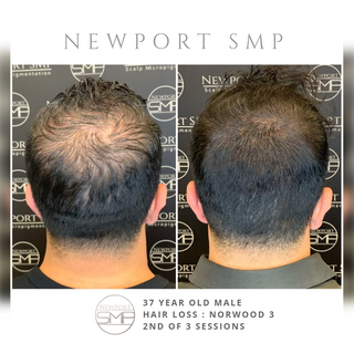SMP on Severe thinning and balding
