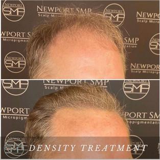 Density Treatment SMP