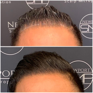 SMP for thinning hairline