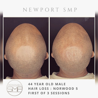 SMP on Shaved Head