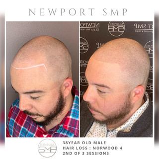 SMP on Shaved head & scar coverage