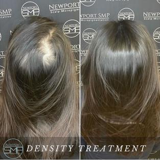 Female Density Treatment