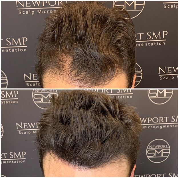 Hairline & Templeb Density
