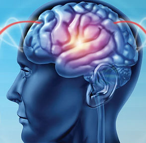 hdr-what-is-neurofeedback-head.jpg