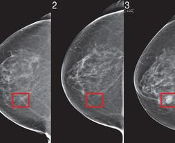 L'Intelligence Artificielle, une alliée inattendue dans la lutte contre le cancer du sein