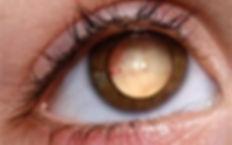 опухоли орбиты глаза