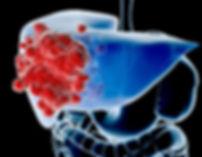 Рак в воротах печени лечение