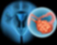 Рак шейки матки 2 стадии после лечения