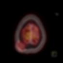 позитронно эмиссионная томография рака легкого