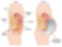 асцит при раке яичников